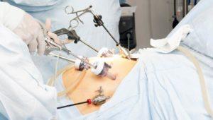 Операції на товстому кишківнику
